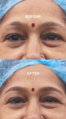 Permanent Eyebrow Correction - Aliens Tattoo