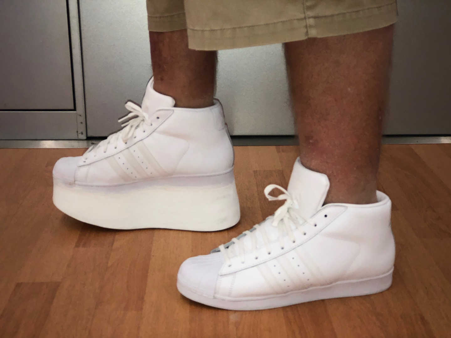 Leg Length Discrepancy Shoe Build-up