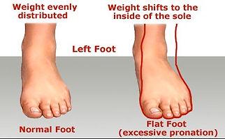 Flat-Feet-1.jpg