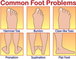 Common Foot Problems.jpg