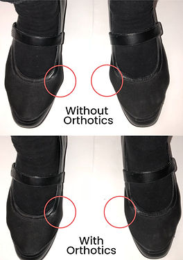 Without Orthotics.jpg