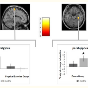 Dancing makes new brain