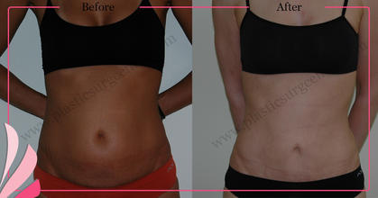 MINIABDOMINOPLASTY | MINI TUMMY TUCK | GOKHAN OZERDEM ANTALYA TURKEY