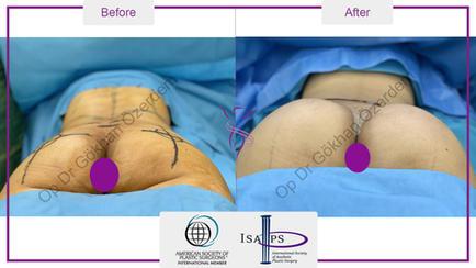 buttock-implant-2.jpg