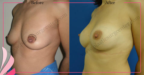 BREAST AUGMENTATION | ENLARGEMENT BEFORE - AFTER