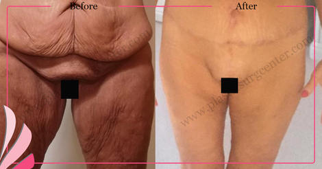 BODY CONTOURING   AFTER MASSIVE WEIGHT LOSS SURGERY   POST BARIATRIC   TURKEY ANTALYA