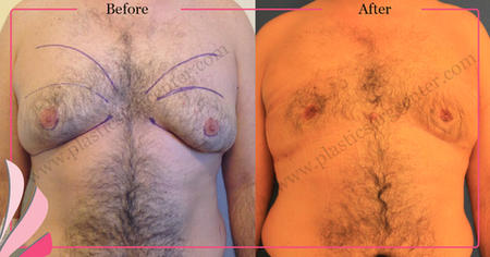 GYNECOMASTIA BEFORE - AFTER