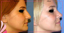 Nose Surgery Nose Job Rhinoplasty Before After | ANTALYA TURKEY | OP DR GOKHAN OZERDEM