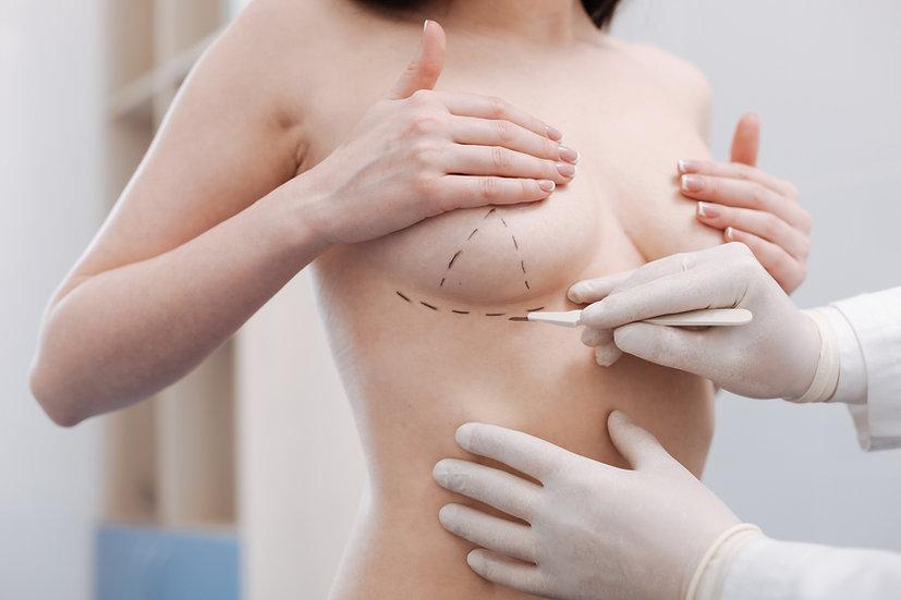 Meme Göğüs Küçülte Dikleştirme Estetiği Antalya