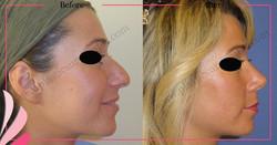 Nose Surgery Nose Job Rhinoplasty Before After | ANTALYA TURKEY | OP DR GOKHAN OZERDEM