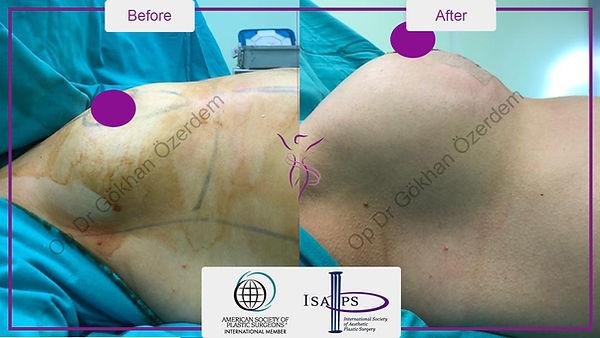 breast-lift-augmentation-6.jpg