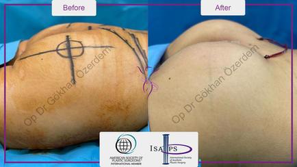 buttock-implant-1.jpg