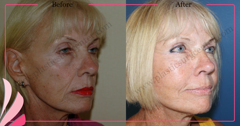Cosmetic Face Surgery Face Lift Before After | Facial Rejuvenation Surgery | ANTALYA TURKEY | OP DR GOKHAN OZERDEM