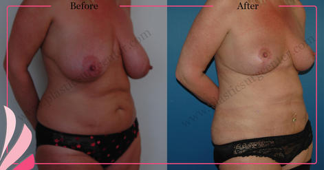 BREAST REDUCTION SURGERY BEFORE AFTER   OP DR GOKHAN OZERDEM   ANTALYA TURKEY