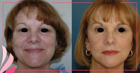 Cosmetic Face Surgery | Facial Rejuvenation Surgery | ANTALYA TURKEY | OP DR GOKHAN OZERDEM