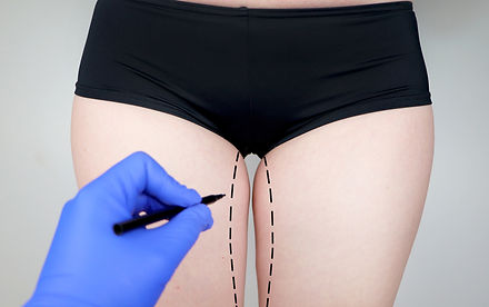 INNER THIGH LIFT SURGERY TURKEY