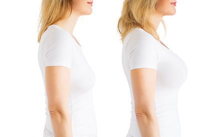Woman before and after breast augmentati