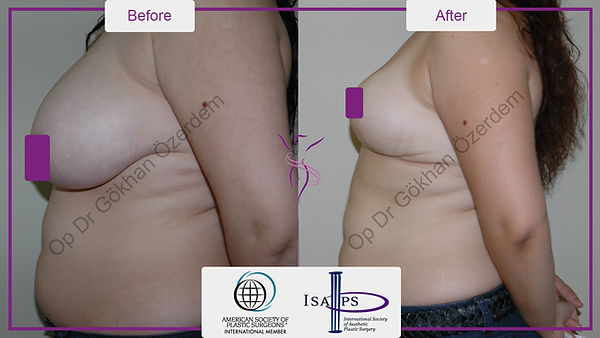 BREAST REDUCTION BEFORE AFTER | TURKEY ANTALYA