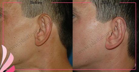 PROMINENT EAR SURGERY BEFORE AFTER