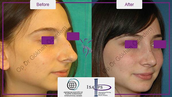 nose-job-burun-estetigi-before-after-7.j