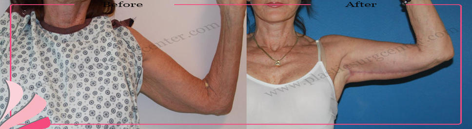 ARM LIFT COMBINED WITH LIPOSUCTION | OP DR GOKHAN OZERDEM ANTALYA TURKEY