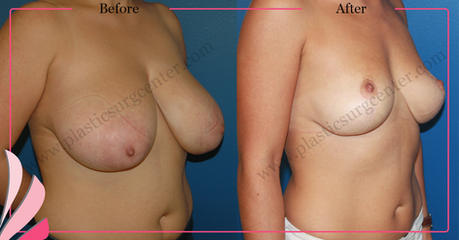 BREAST REDUCTION SURGERY BEFORE AFTER | OP DR GOKHAN OZERDEM | ANTALYA TURKEY