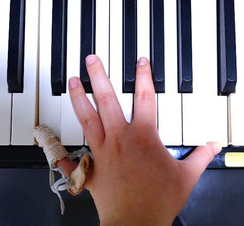 Octave Prosthetic | Version 1: The Ballet Slipper