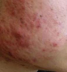 acne_type1_before-280x300.jpg