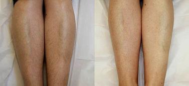legs_epil.jpg