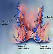 Hemorrhoid banding near me