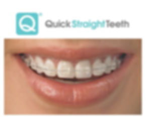 Quick-Straight-Teeth-Logo final.jpg