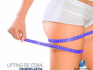 Lifting de coxas