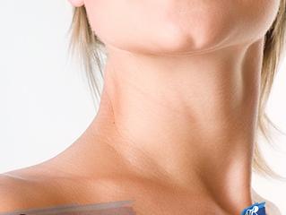 Cervicoplastiaou Cirurgia do Rejuvenescimento Cervical