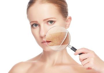 tratamento de tumores de pele