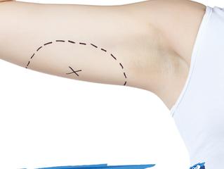 Conheça a Cirurgia Braquioplastia (Lifting de Braços)