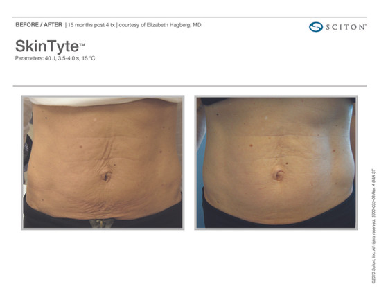 Skin Tyte Before and After
