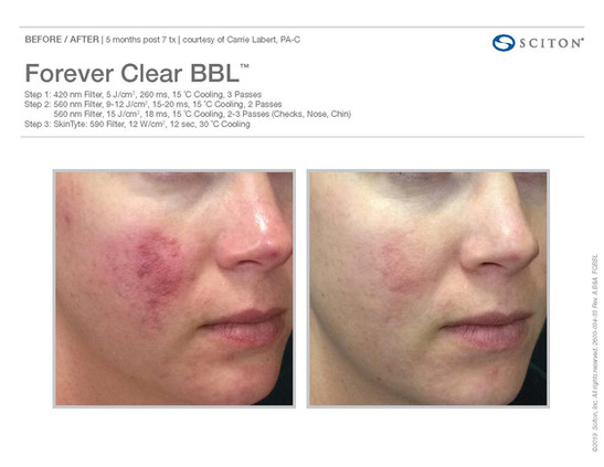 Forever Clear BBL Before and After