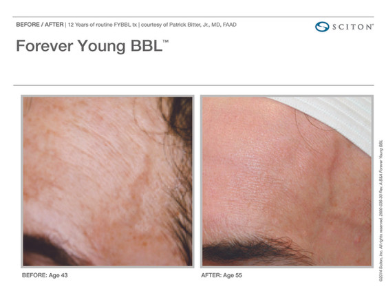 Forever Young BBL Before and After