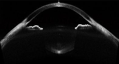 anterior eye OCT.jpg