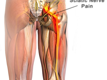 Can Massage Help With Sciatica