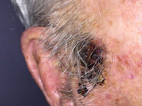 Should this 87-year-old's suspected melanoma be treated?