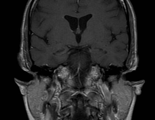faciobrachial dystonic seizures, anti-Lgi1/anti-VGKC autoimmune limbic encephalitis