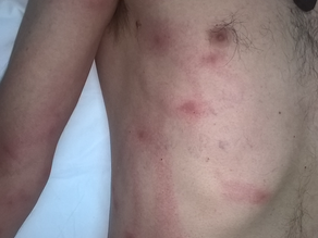 A dermatologist-recommended case of cows, insects, and a raised red rash