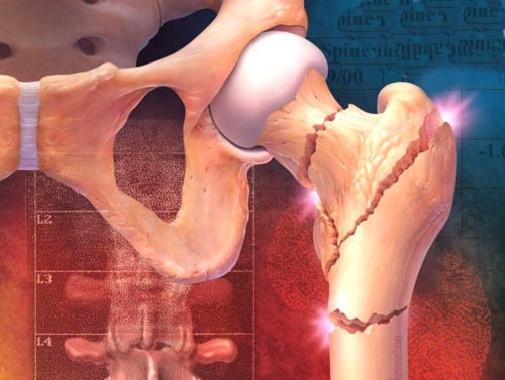 Cuidado com os ossos - Blog - Pilates Ponto Norte
