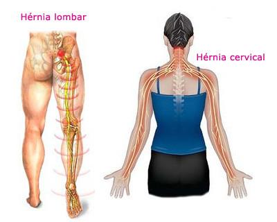 Hérnia de disco - Sintomas - Pilates Ponto Norte