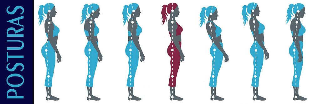 RPG e problemas posturais - Blog Pilates Ponto Norte
