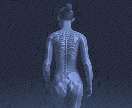 Osteoporose - Blog - Pilates Ponto Norte