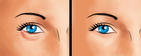 eyelid-surgery-lower-eyelid-incision.jpg