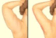 arm-lift-1.jpg