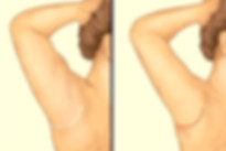 arm-lift-3.jpg
